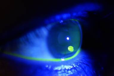 http://www.rcemlearning.co.uk/references/corneal-injuries/